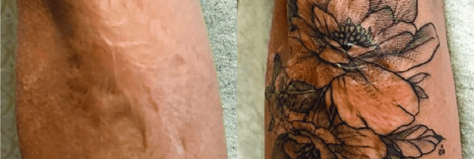 Scar Cover-Up Tattoos - What You Need to Know to Be Prepared